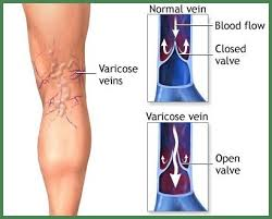 How to Cure Spider Veins