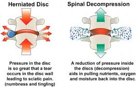 Explain Invasive Spinal Decompression Therapy