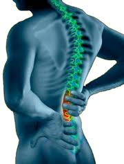 Dealing with Spine Surgery