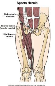 Signs and Symptoms of Sports Hernia