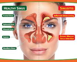 What are the Symptoms of Sinusitis
