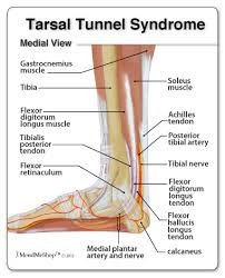 Symptoms and Treatment of Tarsal Tunnel Syndrome