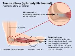 Prevention and Treatment of Tennis Elbow