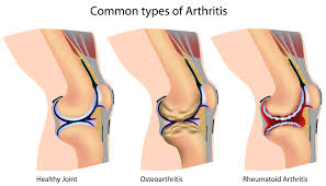 Treatment Arthritis Naturally