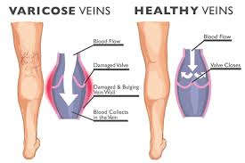Define and Discuss on Varicose Veins