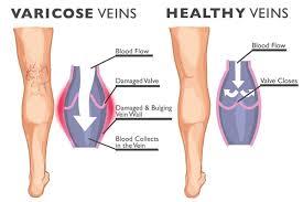 Define and Discuss on Varicose Veins