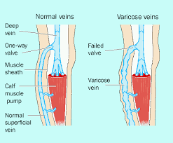 Analysis on Venous Leg Ulcers