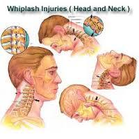 Whiplash Orthopaedic Conditions