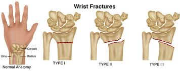 Overview Common Wrist Fractures