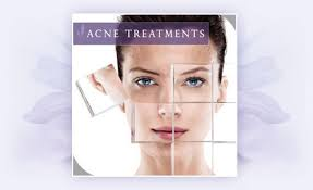 Define and Discuss on Acne Treatment