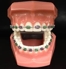 Define on Different Types of Braces