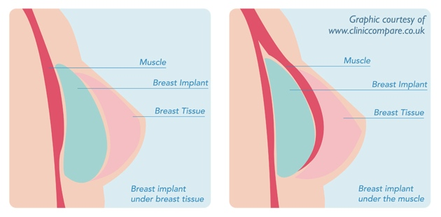 The Potential Benefits Of Breast Uplift Surgery