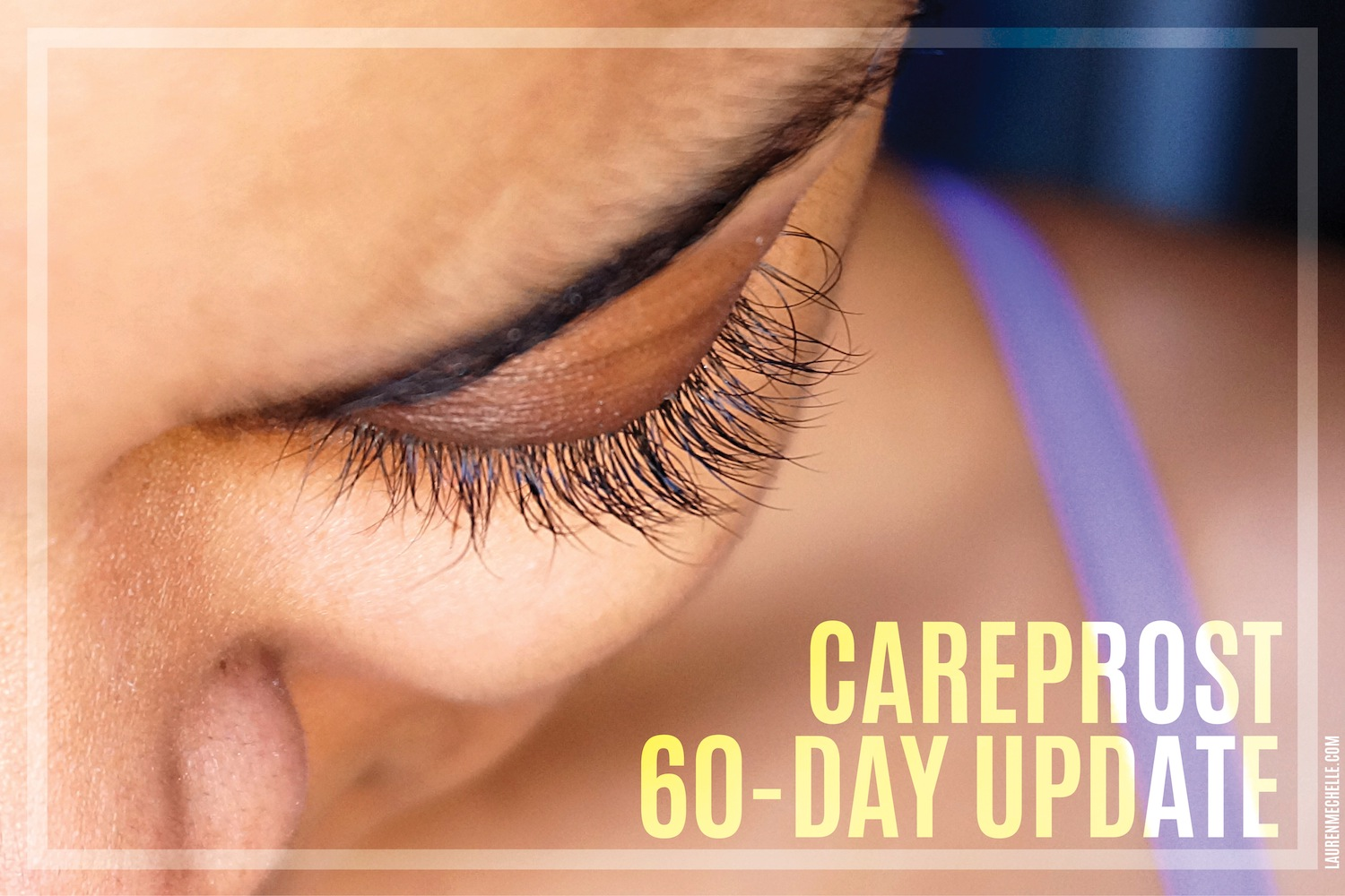 Define on Careprost for Longer Eyelashes