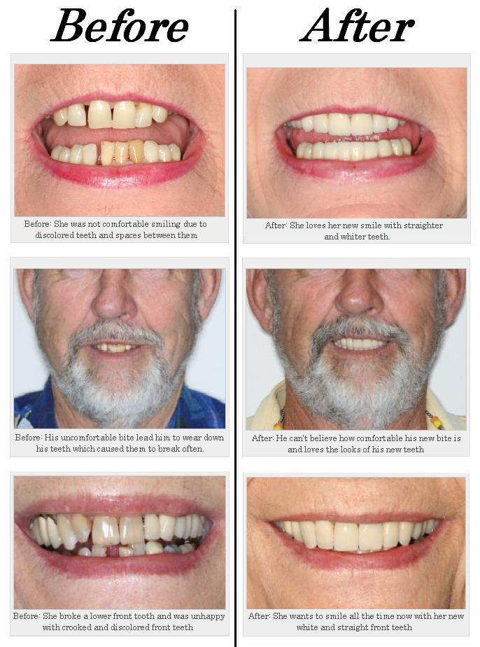 Discuss on Cosmetic Dentist fort Lauderdale