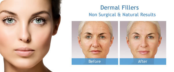 Analysis on the various Derma Fillers