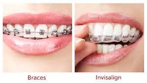 Advantages of Invisalign