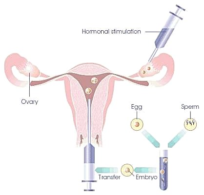Discuss on IVF Implantation