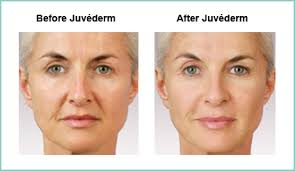 Revitalizing Effects of Juvederm