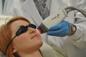 Define on Hair Removal Laser Treatment