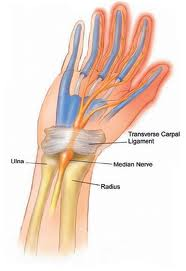 How to Treatment Repetitive Strain Injuries