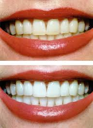 Discuss on Teeth Whitening and Secrets
