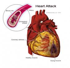 Types of Heart Disease and Treatment