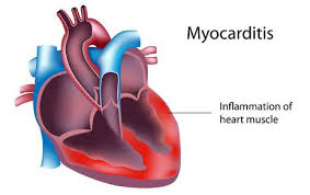 Signs and Symptoms of Myocarditis