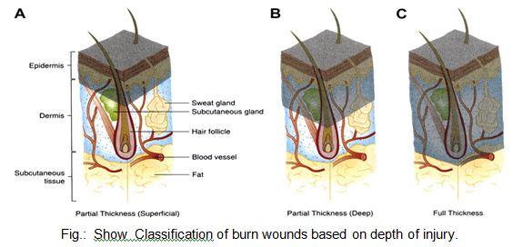 depth of injury