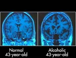 Alcohol Dementia