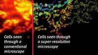 High Resolution Microscope