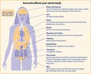 Know about Anorexia
