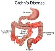 Diagnosing Crohns Disease