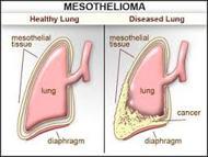 Mesothelium