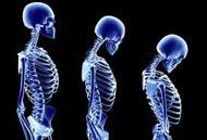 Define on Osteoporosis