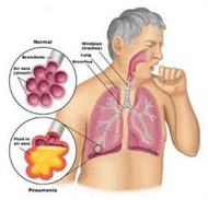 About Pneumonia