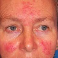 Main Forms of Rosacea