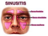 About Sinusitis