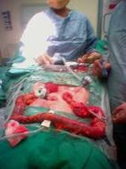 Ulcerative Colitis Surgery