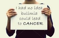About Bulimia