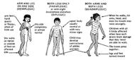 Kinds of Cerebral Palsy
