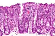 Lymphocytic Colitis