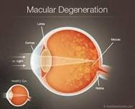 About Macular Degeneration