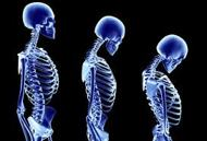 About Osteoporosis