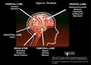 About Anoxic Brain Injury