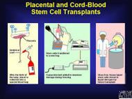Cord Blood Stem Cell