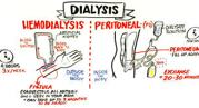 Kinds of Dialysis