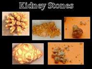 Cause of Kidney Stones