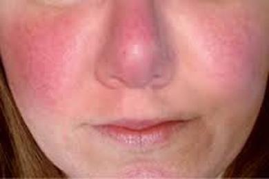 Facial Blushing