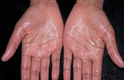 Treatment of Hyperhidrosis