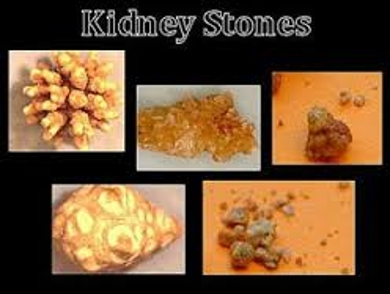 Kinds of Kidney Stones